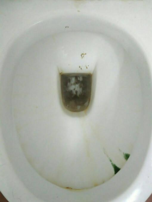 gross-toilet-bowl